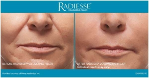 Radiesse Before and After 2